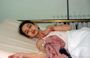 . Une fillette blessée par une bombe à Damas le 26.10.2012. Galerie de FreeDomhouse. (CC BY 2.0)